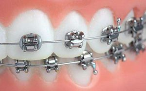 Advantages and disadvantages of all types of braces & Comparison of differences