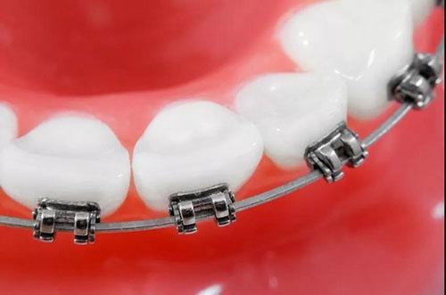 common braces
